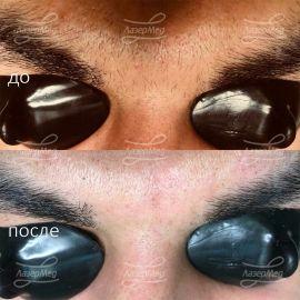 Лазерная эпиляция мужских бровей на Александритовом аппарате