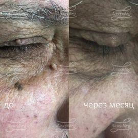 Удаление доброкачественных новообразований кожи лица ( папилломы, кожный рог)