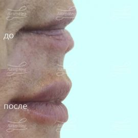 Контурная пластика возрастных губ