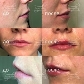 Контурная пластика губ, введён 1 мл геля на основе гиалуроновой кислоты