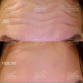 Коррекция мимических морщин ботулотоксином типа А