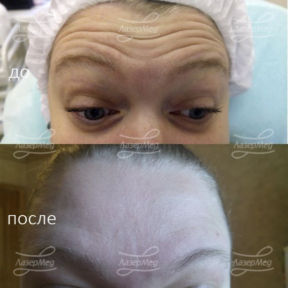 Коррекция морщин на лбу с применениями препаратов на основе ботулотоксина