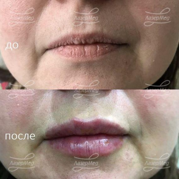 Коррекция формы, объёма губ, уголков рта. Использование препарата Juvederm Ultra 3 (Франция)