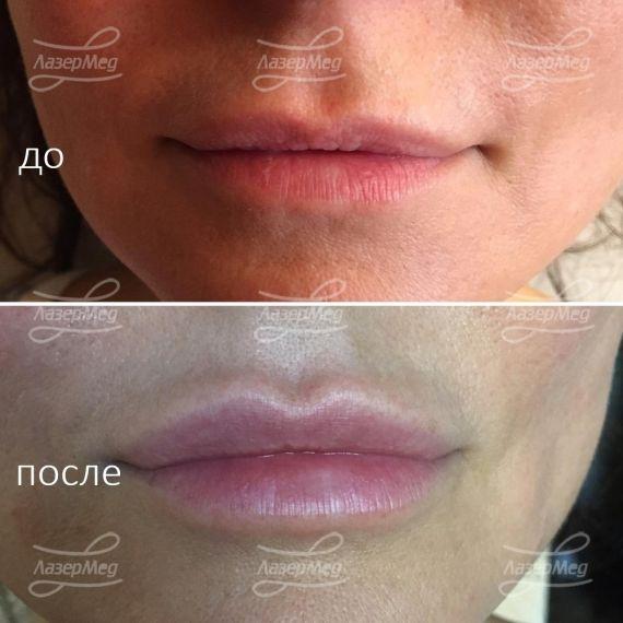 Коррекция объема губ