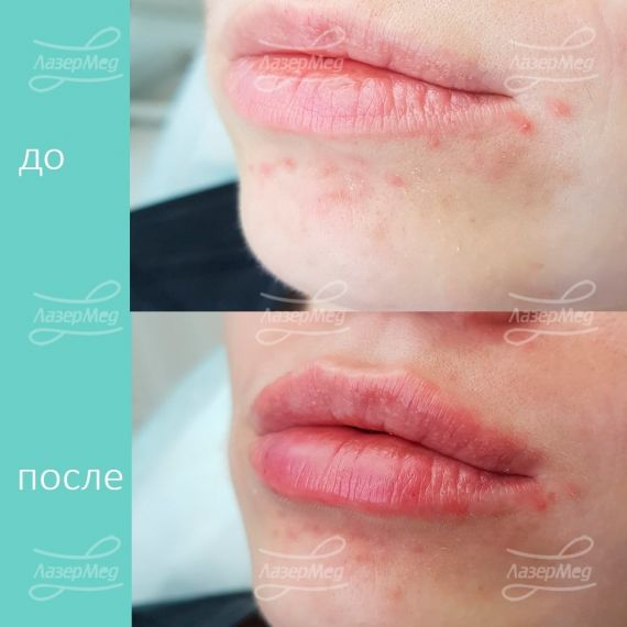 Увеличение губ и коррекция носогубных складок филлером на основе гиалурновой кислоты