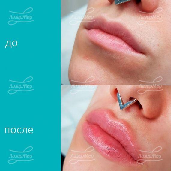 Контурная пластика губ филлером на основе гиалуроновой кислоты