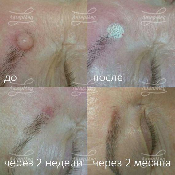Фиброма кожи лица