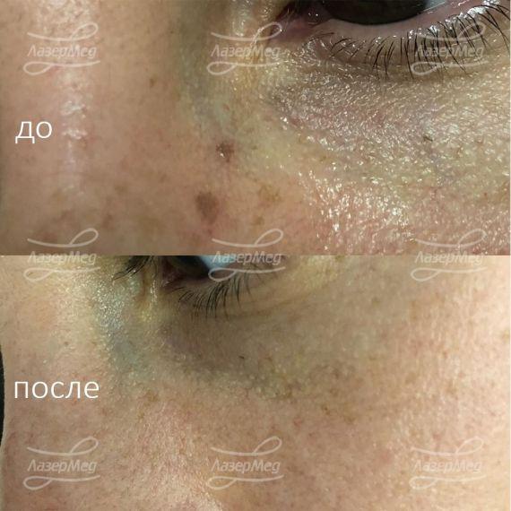 Лечение гиперпигментных пятен лица лазером