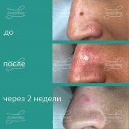 Удаление невуса области носа углекислотным лазером, диагноз подтверждён гистологически