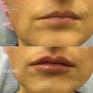 Коррекция ассиметрии и увлажнение губ
