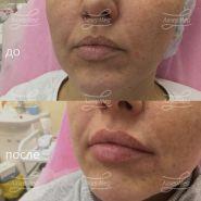 Коррекция объема губ препаратом на основе гиалуроновой кислоты