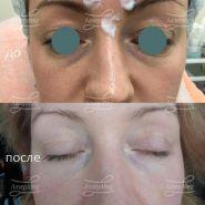 Коррекция носослезной борозды препаратом на основе гиалуроновой кислоты