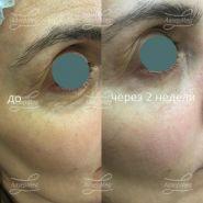 Коррекция носослезной и пальпебромалярной борозды гелем на основе гиалуроновой кислоты