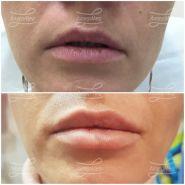 Коррекция объёма губ