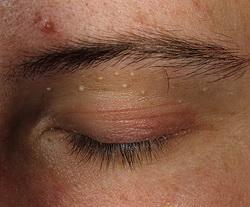 Лазерное сужение влагалища - - клиника косметологии и омоложения в г. Атырау