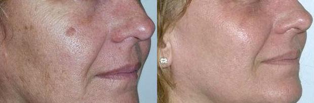 лазерная шлифовка растяжек до и после фото